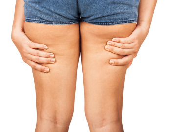 Unas piernas con celilitis