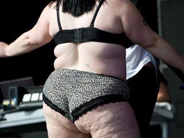 Una mujer con celulitis