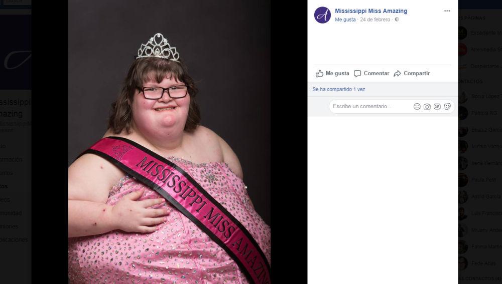 Mississippi Miss Amazing