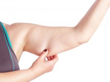 Ejemplo de brazo con flacidez