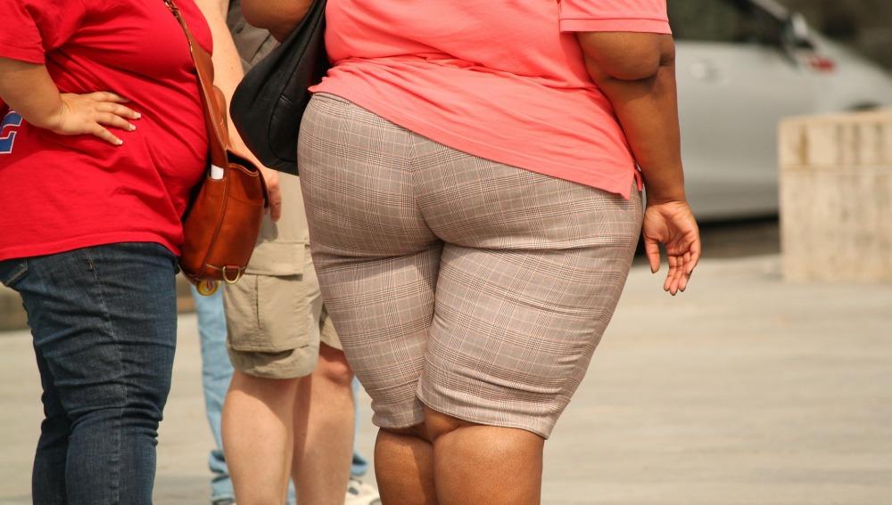 La obesidad es la epidemia del S.XXI