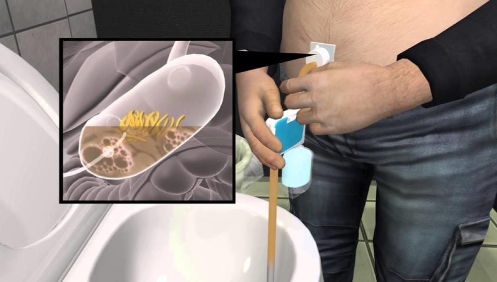 Dispositivo para aspirar el estómago