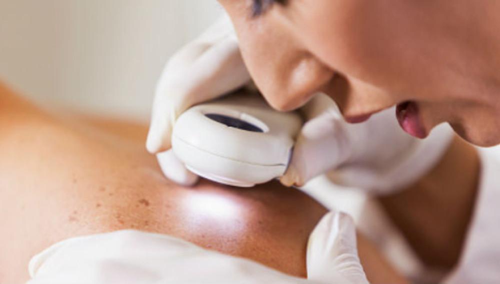 Revisión de la piel