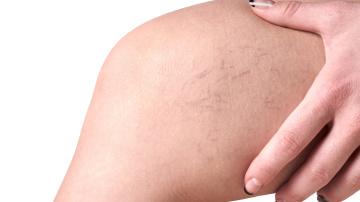 Las varices pueden ser un síntoma del embarazo